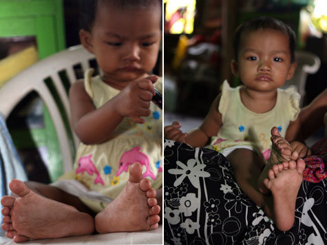 NEW GUINNESS WORLD RECORD: Girl in Myanmar has 12 fingers + 14 toes!