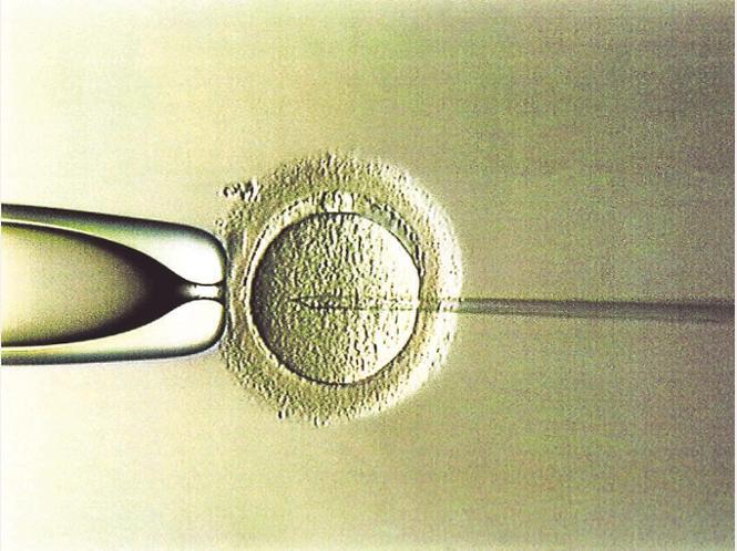künstliche befruchtung kosten für single Dreieich