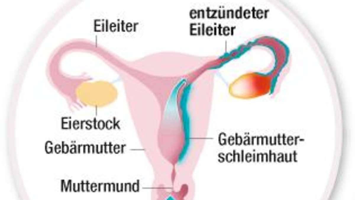 vaginaler juckreiz