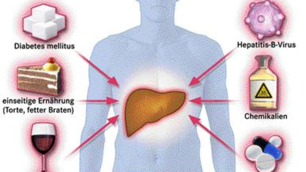 Alkohol und Infektionen: Die größten Gefahren für die Leber | Welt