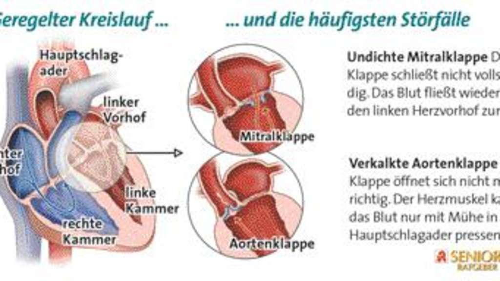 Niedlich Die Anatomie Des Menschlichen Herzens Galerie - Anatomie ...