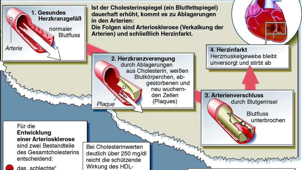 Charmant Normaler Blutfluss Durch Herz Zeitgenössisch - Anatomie ...